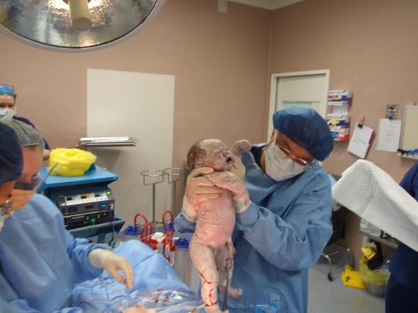 Dr Serag Youssif Caesarean Section 13
