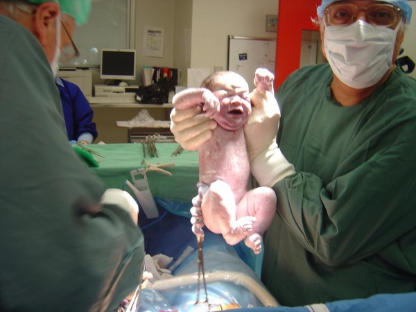 Dr Serag Youssif Caesarean Section 5
